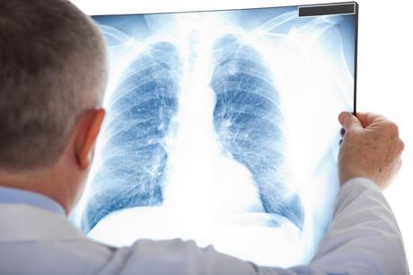 Des fibroblastes exposés à des e-liquides contenant de la nicotine présentent une viabilité accrue, des concentrations plus élevées de nicotine conduisant à une plus grande vitalité encore.