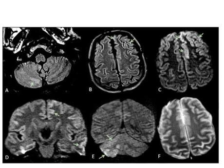 L'étude montre que ces complications neurologiques peuvent inclure plusieurs types d'encéphalopathie dont le syndrome d'encéphalopathie réversible postérieure (avec anomalies radiologiques cérébrales bilatérales réversibles- voir visuel ci-contre), l'encéphalopathie hypoxique ischémique ou encore une exacerbation de la maladie démyélinisante.
