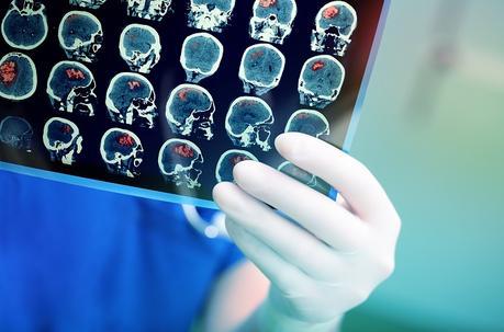 Mais quel est l'impact du virus sur le système nerveux central ? (Visuel AdobeStock_105281083)