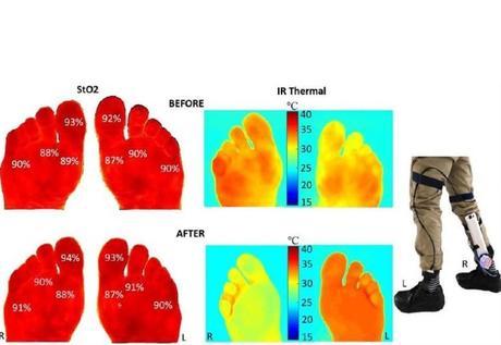 Bien que les pieds des participants diabétiques soient devenus plus chauds que ceux des volontaires sains pendant la marche sur tapis roulant, leur température moyenne n'a pas dépassé 27,5 degrés C