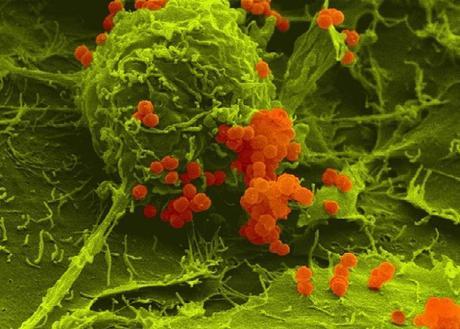La petite protéine de liaison ProQ garantit que les méningocoques seront capables de réparer leur ADN s'ils sont endommagés et les rend également résistants au stress oxydatif (Visuel Alexandra Schubert-Unkmeir / Université de Wuerzburg)