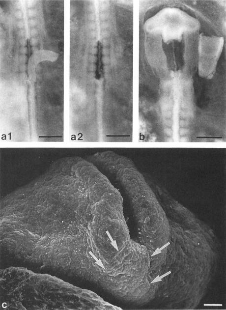 Greffe de tube neural