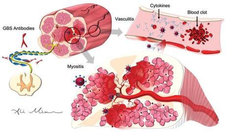 Le virus déclenche une cascade inflammatoire ou « tempête de cytokines », qui commence dans les poumons, se propage dans les vaisseaux sanguins et dans tous les organes du corps. Cette tempête de cytokines conduit à la formation de caillots sanguins qui provoquent des AVC dans le cerveau. (Journal of Alzheimer's Disease)