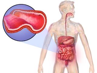 #thelancetgastroenterologyandhepatology #crohn #ozanimod Ozanimod comme thérapie d'induction chez des patients atteints de la maladie de Crohn : étude de phase 2 à simple bras, prospective, dont l'observateur est maintenu à l'aveugle
