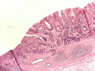 #thelancetoncology #cancergastrique #lenvatinib #pembrolizumab Lenvatinib + pembrolizumab dans un contexte de traitement de première intention ou de deuxième intention chez des patients atteints de cancer gastrique (EPOC1706) : essai de phase 2 ouvert ...