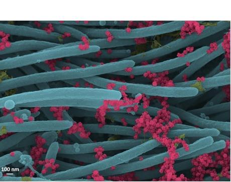 Un nombre incroyablement élevé de virions produits et libérés par chaque cellule du système respiratoire humain (Visuel Ehre Lab, UNC School of Medicine)