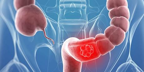 Comment vivre avec le cancer colorectal ?