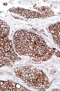 #thelancetrespiratorymedicine #CBNPC #pembrolizumab #radiothérapie Pembrolizumab avec ou sans radiothérapie pour le traitement du cancer du poumon non à petites cellules métastasé : analyse combinée de deux essais randomisés