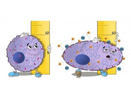 Comme les personnes, les cellules du corps humain protègent leur espace personnel. Elles semblent savoir de combien d'espace elles ont besoin, et lorsque la tumeur est trop confinée, elles préfèrent se libérer et s'échapper (Visuel Wojciech Garncarz (St. Anna Children's Cancer Research Institute))