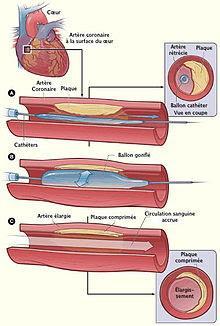 #thelancet #interventioncoronariennepercutanée #ticagrelor #clopidogrel Ticagrelor versus clopidogrel lors d'une intervention coronarienne percutanée élective (ALPHAEUS) : essai de phase 3b randomisé, ouvert