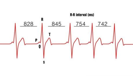 Variabilité de fréquence cardiaque