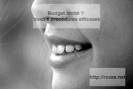 Budget limité ? Voici 4 procédures efficaces