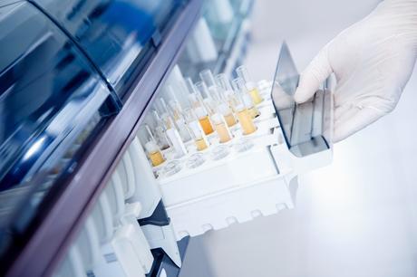 C'est une option moins invasive et plus fiable, basée sur le score de risque de spermine mesuré par un simple test d'urine (Visuel Adobe Stock 334065984)