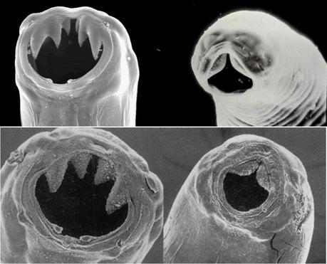 La diversité des crochets qu'emploient les vers ankylostomes (ici Ancylostoma duodenale et Necator americanus) pour s'accrocher à notre paroi intestinale et ponctionner du sang.