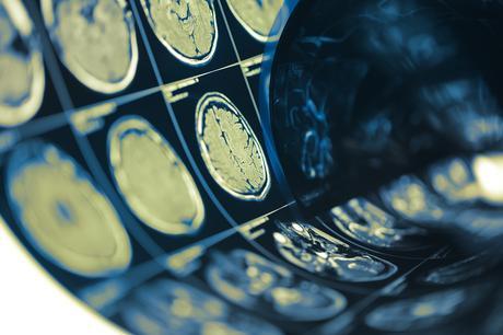 Une baisse des hémorragies sous-arachnoïdiennes partagée par d'autres urgences neurologiques, cérébrales et vasculaires dont les accidents vasculaires cérébraux (AVC) (Adobe Stock 199707478).