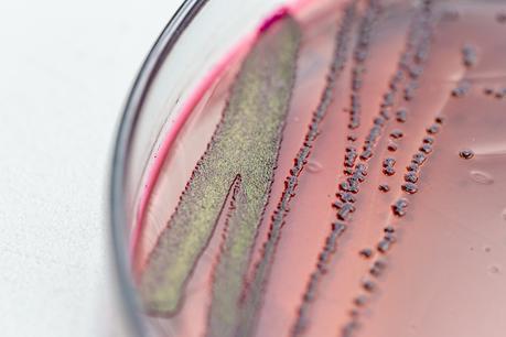 L'E. coli AIEC colonise la muqueuse intestinale (Adobe Stock 205547933)