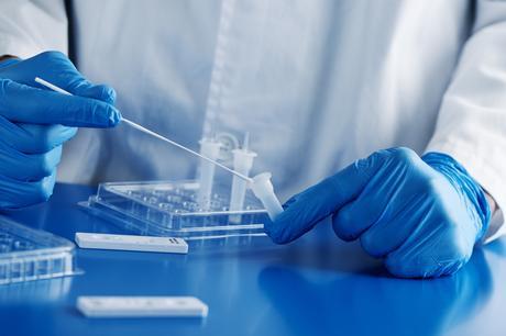 De nouvelles preuves soutiennent le rôle important du système immunitaire et de sa pression, au sein de chaque patient, dans l'évolution du coronavirus SRAS-CoV-2 et l'émergence de nouvelles variantes (Visuel Adobe Stock 409238884)