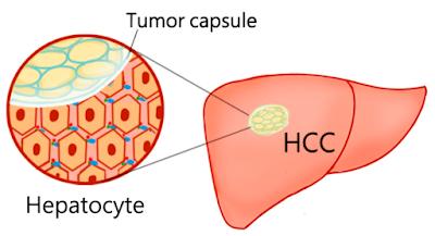 #thelancetoncology #carcinomehépatocellulaire #biosimilairedubevacizumab #bevacizumab #sintilimab Sintilimab plus un biosimilaire du bevacizumab (IBI305) versus sorafenib dans le carcinome hépatocellulaire non résécable (ORIENT-32) : une étude de phase...