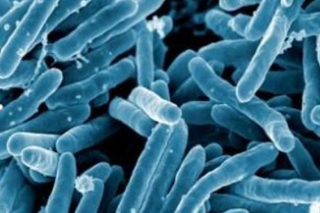 TUBERCULOSE : Une immunothérapie pour contrer les résistances ?