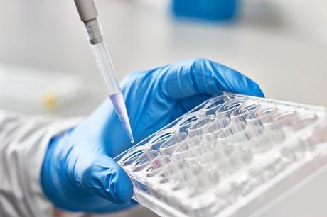 La quantité d'ARN marqueur appelé N6-méthyladénosine (m6A) augmente jusqu'à être multiplié par 4 au cours de la maladie (Adobe Stock 142855037)