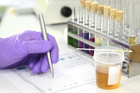 Les biopsies liquides peuvent considérablement aider au diagnostic, au traitement de certains cancers comme le cancer de la vessie ou les tumeurs nerveuses (Visuel Adobe Stock 118320558)