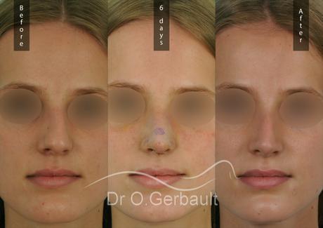 La rhinoplastie ultrasonique : nouveauté beauté